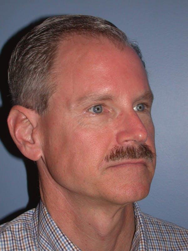 Male Facial Procedures Gallery - Patient 6096740 - Image 7