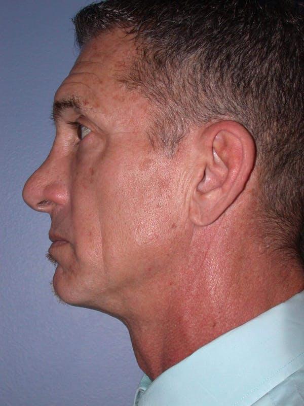 Male Facial Procedures Gallery - Patient 6096741 - Image 3
