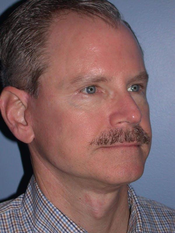 Male Facial Procedures Gallery - Patient 6096740 - Image 8