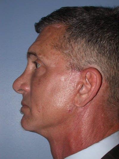 Male Facial Procedures Gallery - Patient 6096741 - Image 4