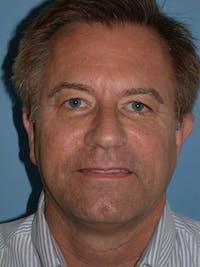 Male Facial Procedures Gallery - Patient 6096742 - Image 1