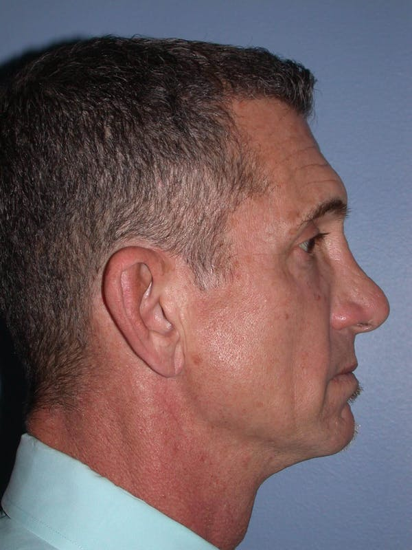 Male Facial Procedures Gallery - Patient 6096741 - Image 5