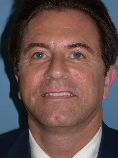 Male Facial Procedures Gallery - Patient 6096742 - Image 2