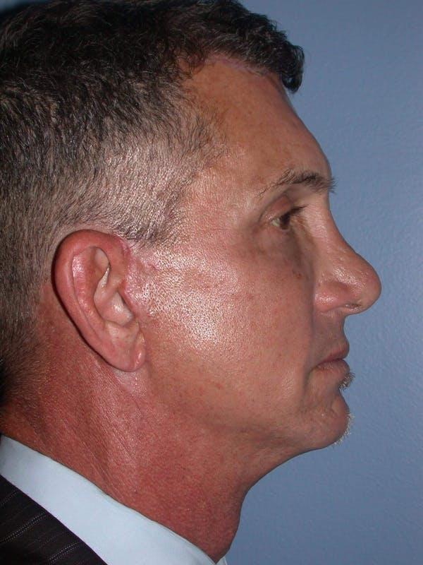 Male Facial Procedures Gallery - Patient 6096741 - Image 6
