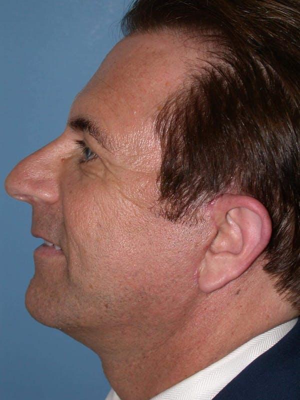 Male Facial Procedures Gallery - Patient 6096742 - Image 4