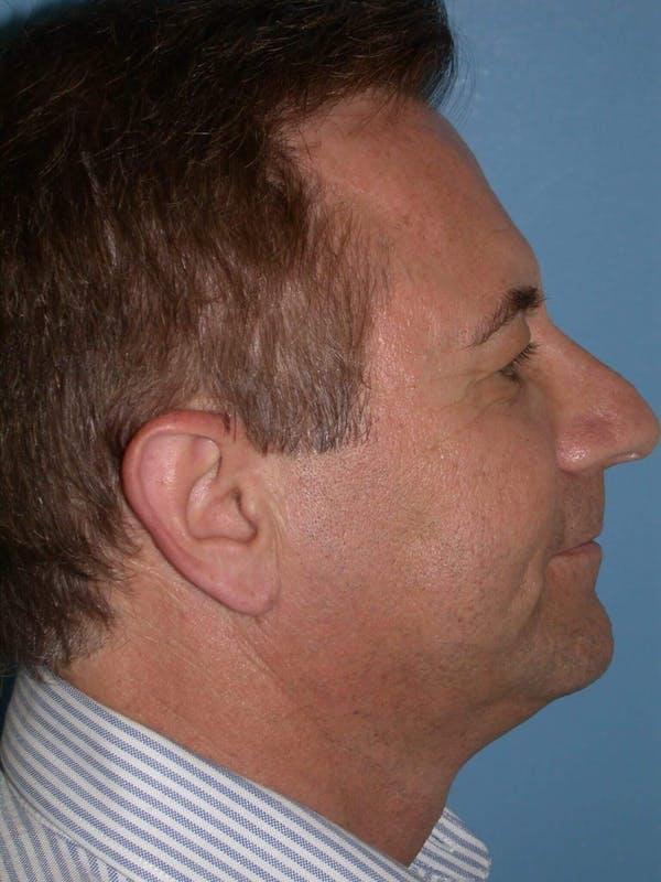 Male Facial Procedures Gallery - Patient 6096742 - Image 5