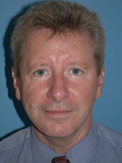 Male Facial Procedures Gallery - Patient 6096743 - Image 2