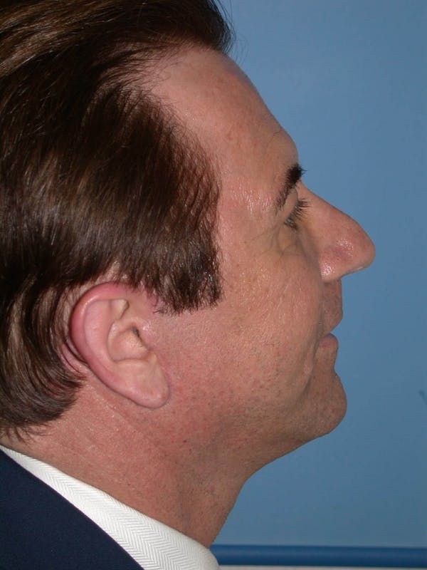 Male Facial Procedures Gallery - Patient 6096742 - Image 6
