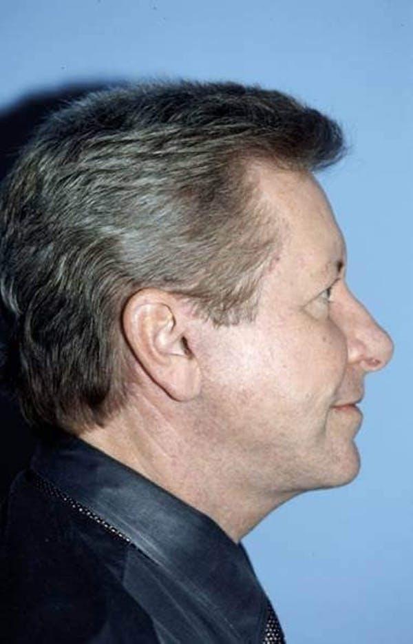 Male Facial Procedures Gallery - Patient 6096743 - Image 3