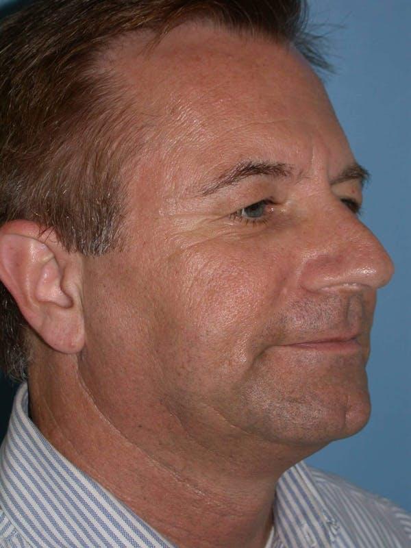 Male Facial Procedures Gallery - Patient 6096742 - Image 7
