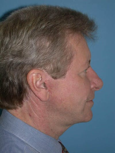 Male Facial Procedures Gallery - Patient 6096743 - Image 4