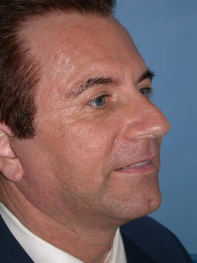 Male Facial Procedures Gallery - Patient 6096742 - Image 8