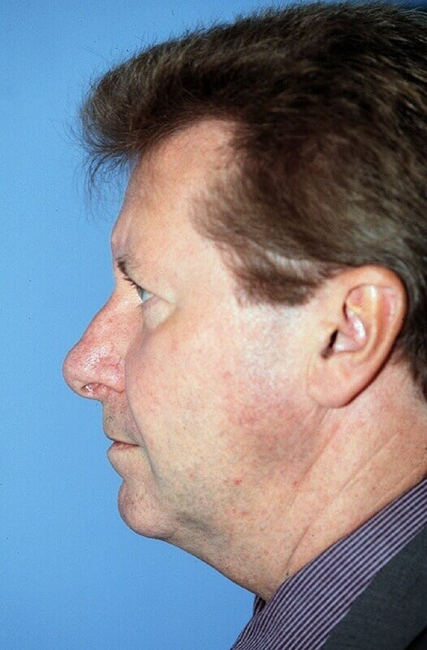 Male Facial Procedures Gallery - Patient 6096743 - Image 5