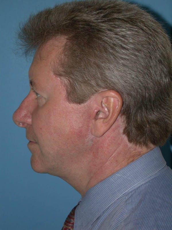 Male Facial Procedures Gallery - Patient 6096743 - Image 6