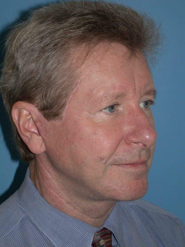 Male Facial Procedures Gallery - Patient 6096743 - Image 8