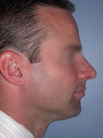 Male Nose Procedures Gallery - Patient 6096898 - Image 1