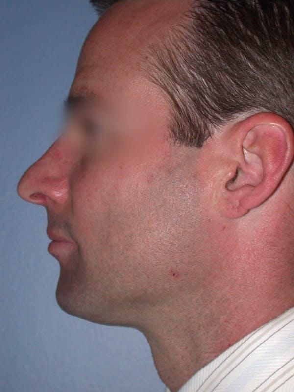 Male Nose Procedures Gallery - Patient 6096898 - Image 3