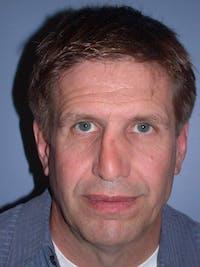 Male Nose Procedures Gallery - Patient 6096899 - Image 1