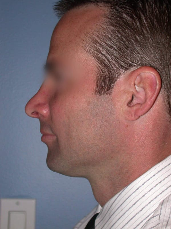 Male Nose Procedures Gallery - Patient 6096898 - Image 4