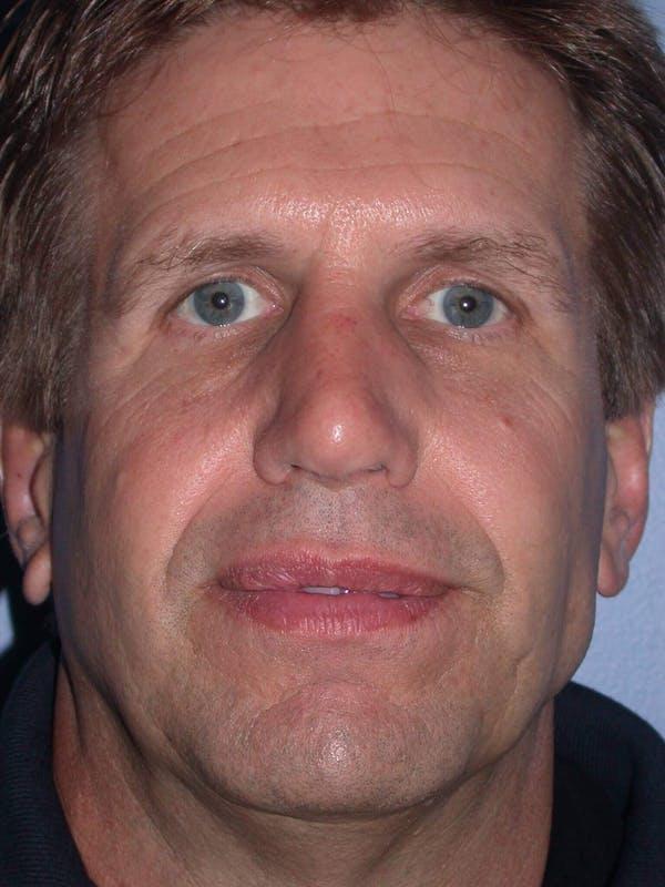 Male Nose Procedures Gallery - Patient 6096899 - Image 2
