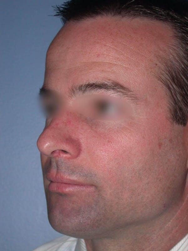 Male Nose Procedures Gallery - Patient 6096898 - Image 5