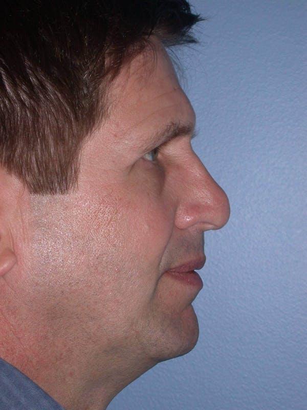 Male Nose Procedures Gallery - Patient 6096899 - Image 3