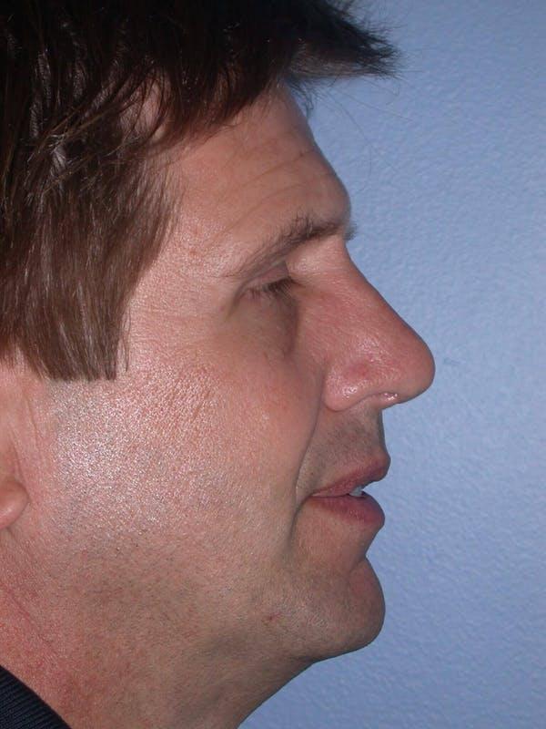 Male Nose Procedures Gallery - Patient 6096899 - Image 4