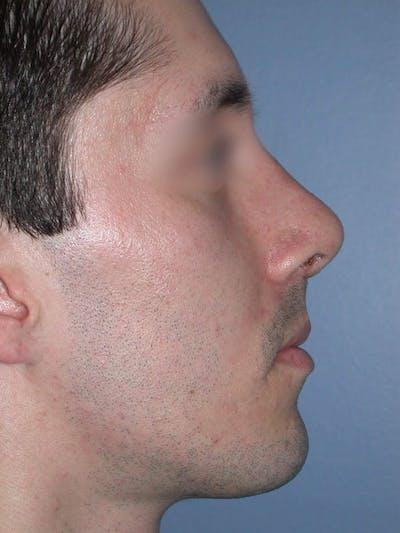 Male Nose Procedures Gallery - Patient 6096900 - Image 2