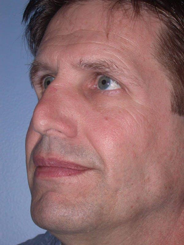 Male Nose Procedures Gallery - Patient 6096899 - Image 5