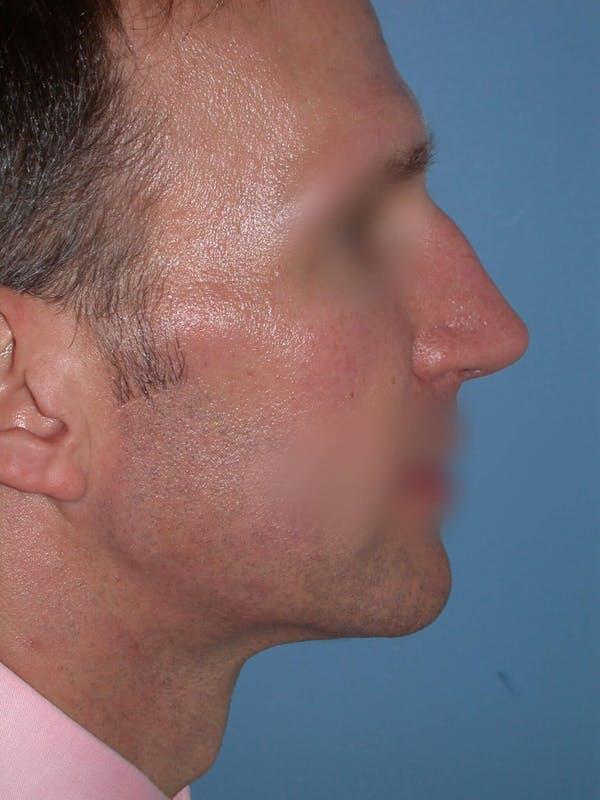 Male Nose Procedures Gallery - Patient 6096901 - Image 1