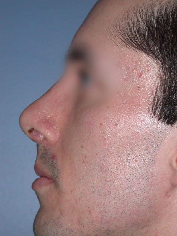 Male Nose Procedures Gallery - Patient 6096900 - Image 4