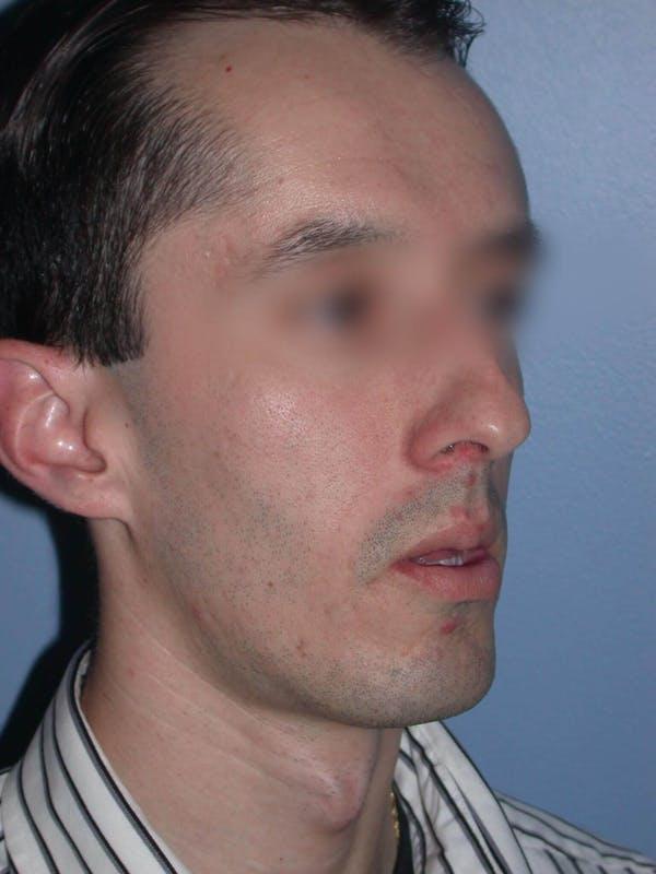 Male Nose Procedures Gallery - Patient 6096900 - Image 5