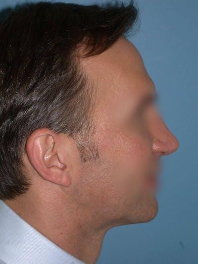 Male Nose Procedures Gallery - Patient 6096901 - Image 2