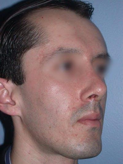 Male Nose Procedures Gallery - Patient 6096900 - Image 6