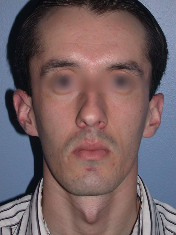 Male Nose Procedures Gallery - Patient 6096900 - Image 7