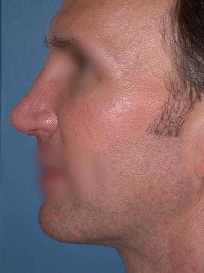 Male Nose Procedures Gallery - Patient 6096901 - Image 4