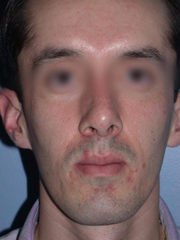 Male Nose Procedures Gallery - Patient 6096900 - Image 8