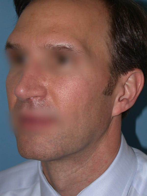 Male Nose Procedures Gallery - Patient 6096901 - Image 6