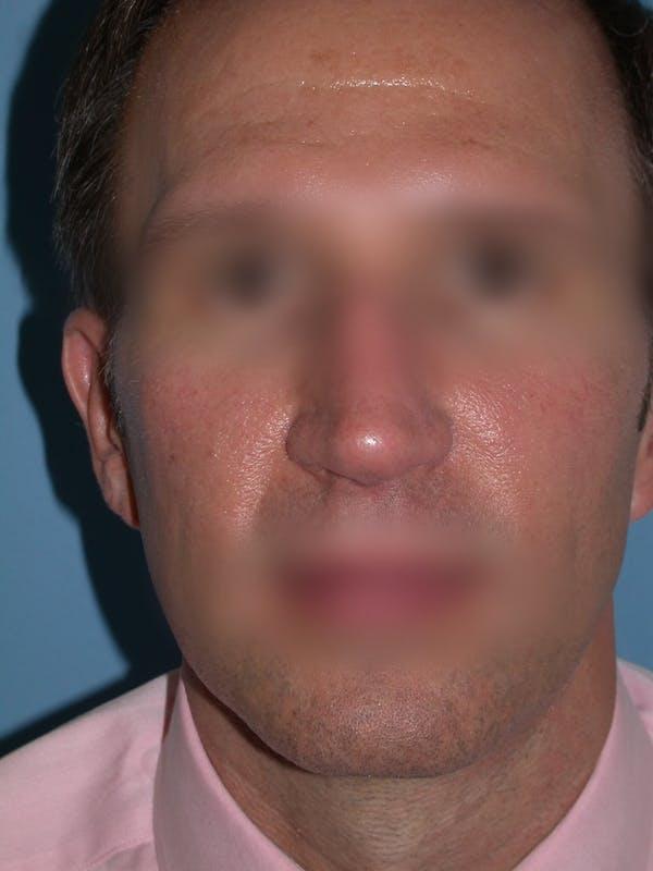Male Nose Procedures Gallery - Patient 6096901 - Image 7