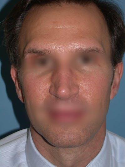 Male Nose Procedures Gallery - Patient 6096901 - Image 8