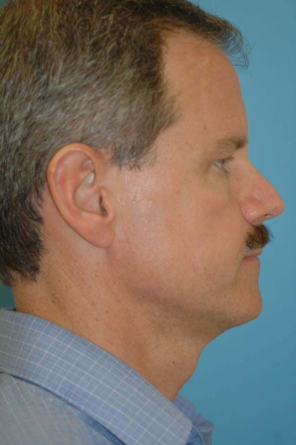 Male Eye Procedures Gallery - Patient 6097010 - Image 3