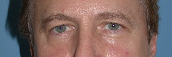 Male Eye Procedures Gallery - Patient 6097011 - Image 1