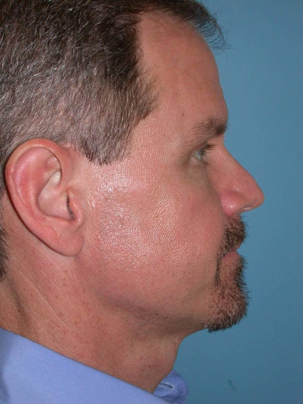 Male Eye Procedures Gallery - Patient 6097010 - Image 4