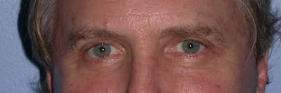 Male Eye Procedures Gallery - Patient 6097011 - Image 2