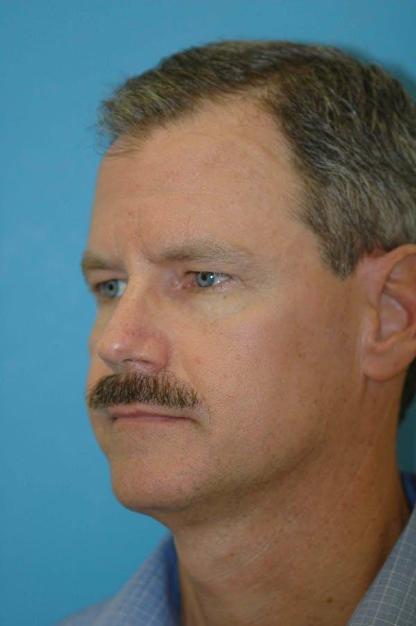 Male Eye Procedures Gallery - Patient 6097010 - Image 5