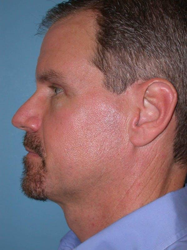 Male Eye Procedures Gallery - Patient 6097010 - Image 6