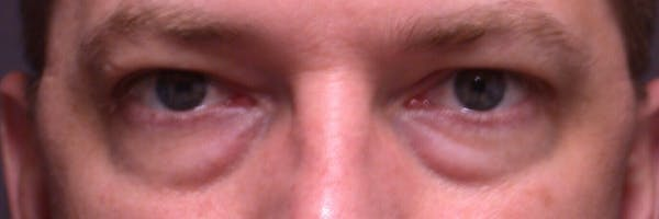 Male Eye Procedures Gallery - Patient 6097012 - Image 1