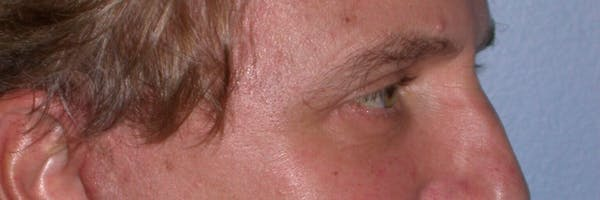 Male Eye Procedures Gallery - Patient 6097011 - Image 4