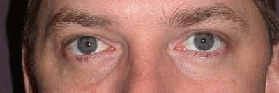 Male Eye Procedures Gallery - Patient 6097012 - Image 2