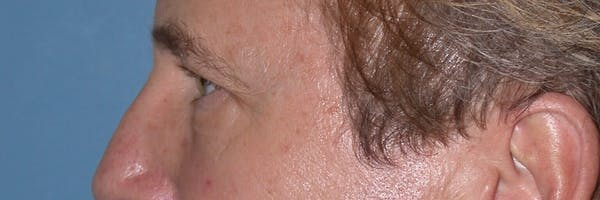 Male Eye Procedures Gallery - Patient 6097011 - Image 5